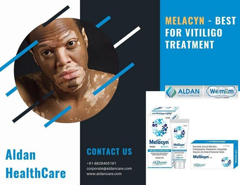 Vitiligo Cure 2019 Archives Enliven Articles