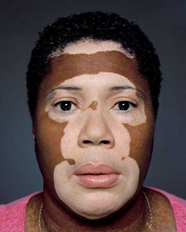 vitiligo treatment in india