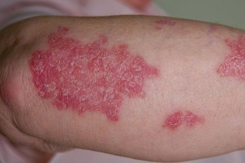 psoriasis pictures - 3