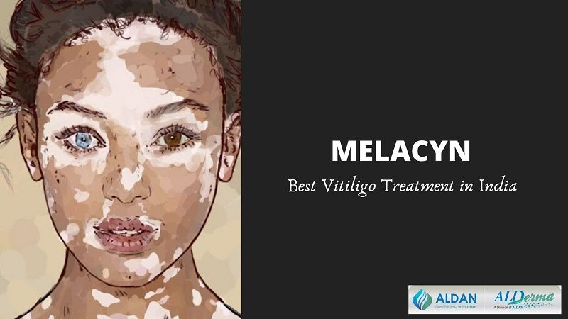 Best Vitiligo Treatment In World Permanent Vitiligo Treatment For Face