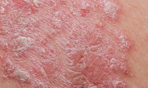 factors causing psoriasis