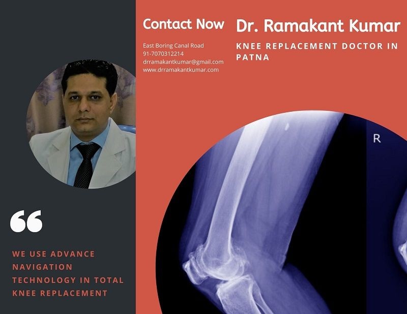 Dr. Ramakant Kumar – Best Doctor for Total Knee Replacement in Patna