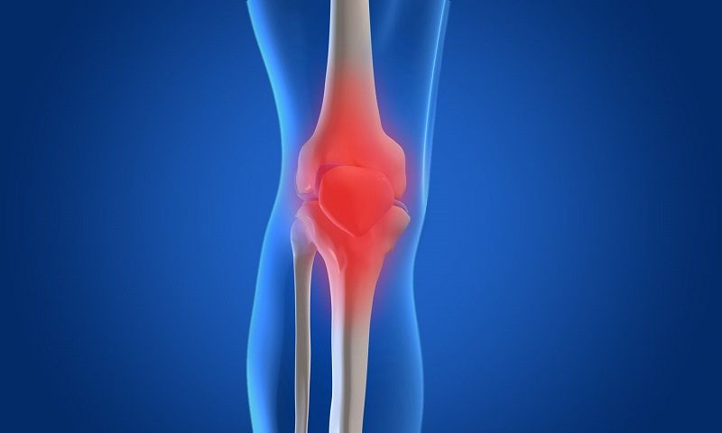 How to Manage Pain Swelling and Bruising After a Total Knee Replacement
