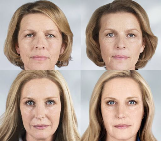 XYZ-Smart-Collagen-before-and-after