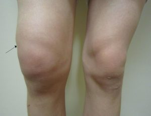 pictures of swelling after knee replacement