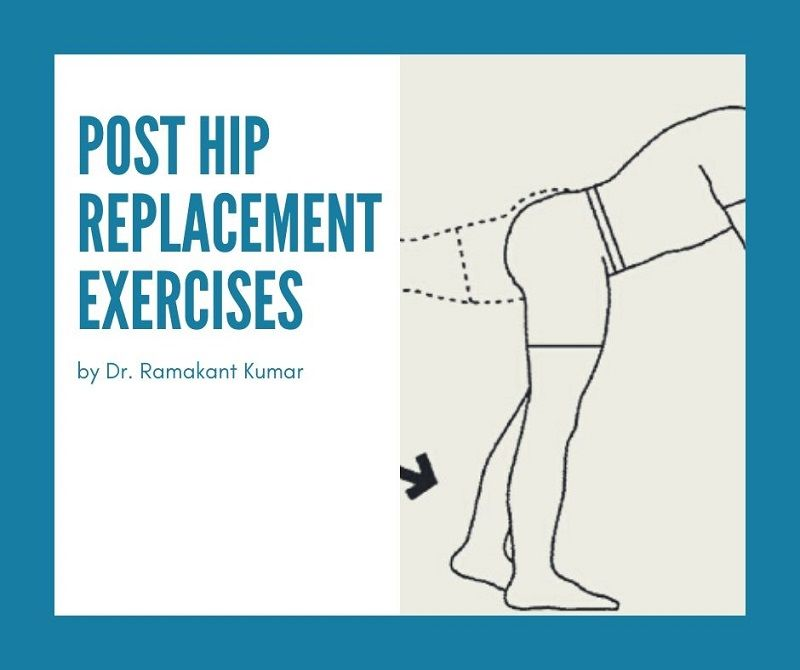 Best Post Hip Replacement Exercises | Hip Replacement Exercises to Avoid