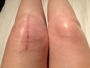 sharp pain after knee replacement