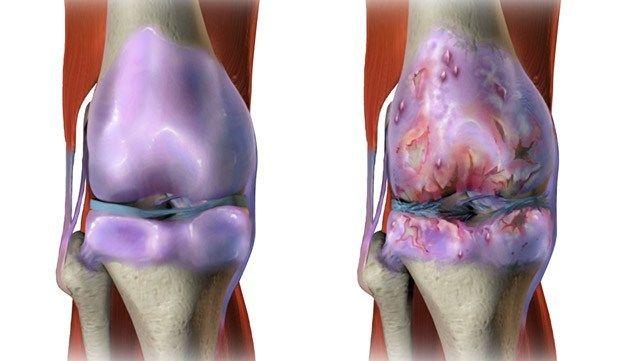 Arthritis Knee Pictures