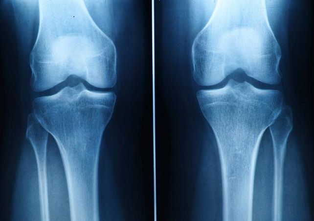 Arthritis in Knee Cap