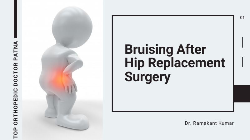 Bruising After Hip Replacement Surgery
