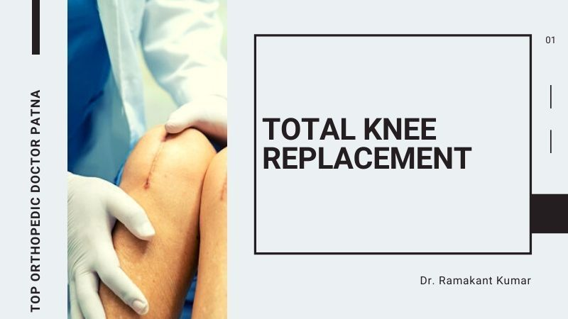Total Knee Replacement – Procedure, Complications & Exercises