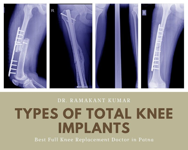 Types of Total Knee Implants | Best Knee Replacement Devices