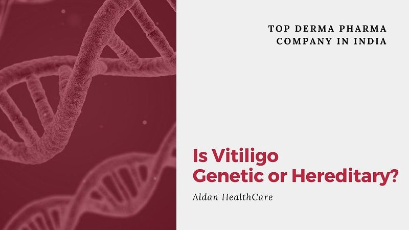 Is Vitiligo Genetic or Hereditary?