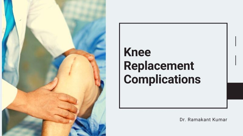 Possible Post-Knee Replacement Complications and Risks