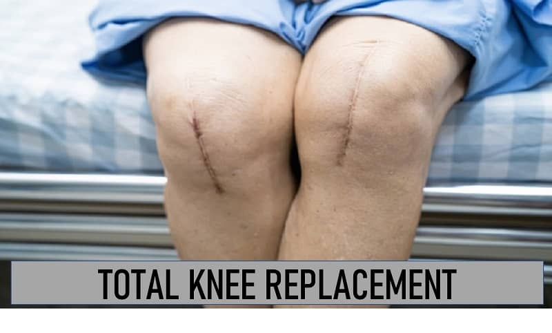 Total Knee Replacement Exercises | Total Knee Replacement Recovery