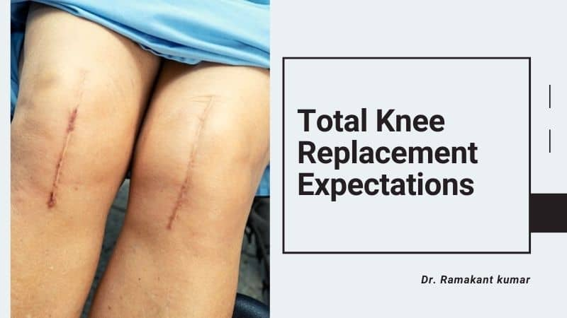 Knee Joint replacement Tips for Better Recovery