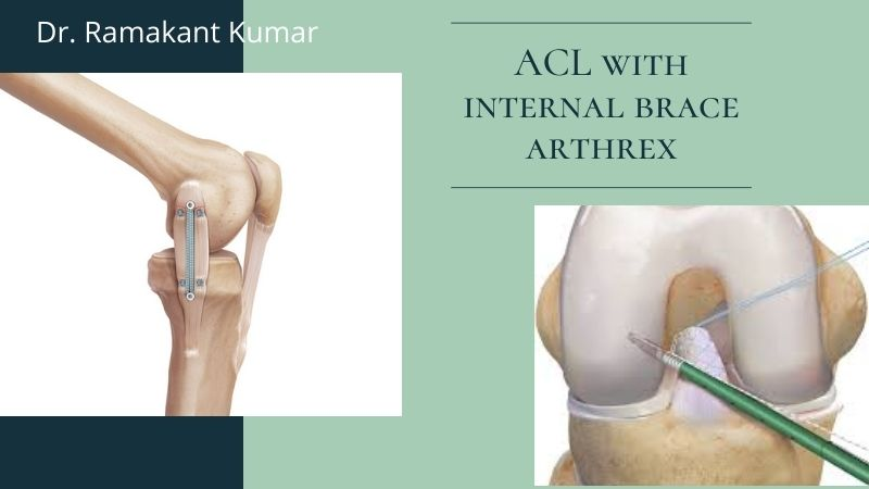 The Importance of ACL with Internal Brace Arthrex Surgery
