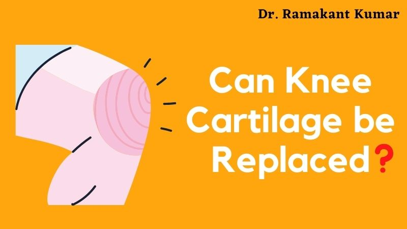 Can Knee Cartilage be Replaced
