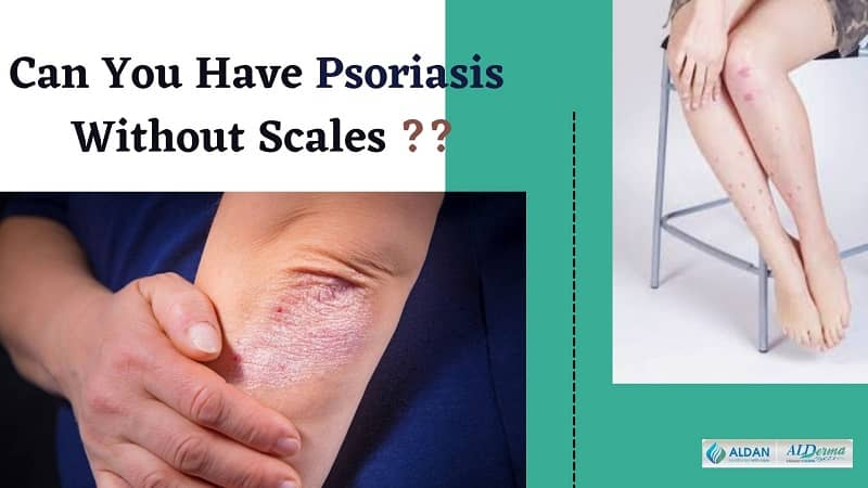 Can You Have Psoriasis Without Scales
