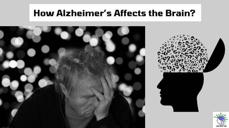 Alzheimer's: Guide to Understand it's Effect on the Brain