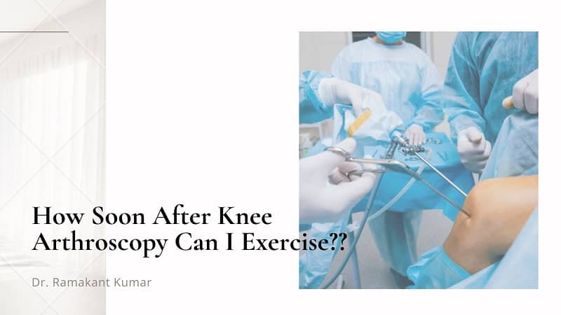 How Soon After Knee Arthroscopy Can I Exercise?