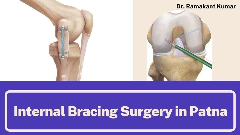 Internal Bracing Surgery: Overview on its Benefits, Needs and Treatments