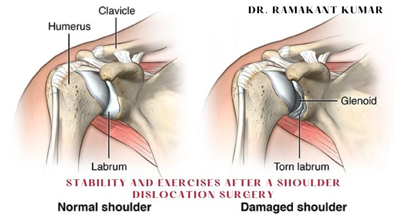 Stability and Exercises After a Shoulder Dislocation Surgery