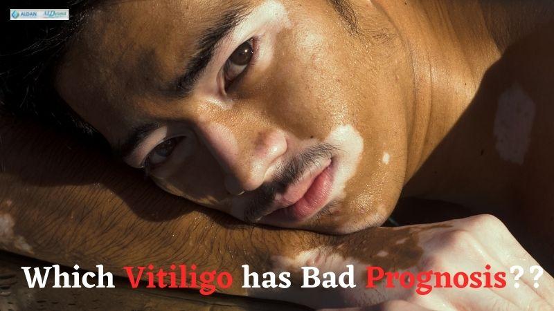 Which Vitiligo Has Bad Prognosis?? Know In the Full Blog Here!