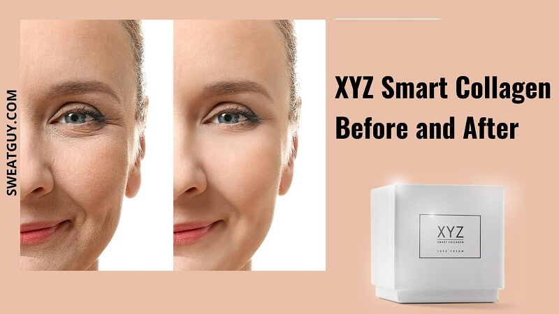 Does XYZ Smart Collagen Really Work? [Before & After Pic Inside]