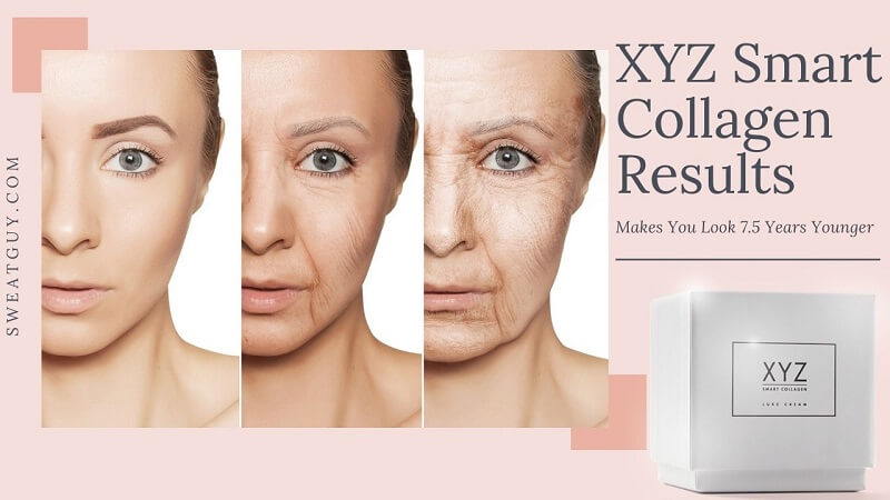 XYZ Smart Collagen Results: Does It Makes You Look 7.5 Years Younger?