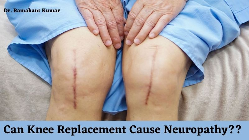can knee replacement cause neuropathy
